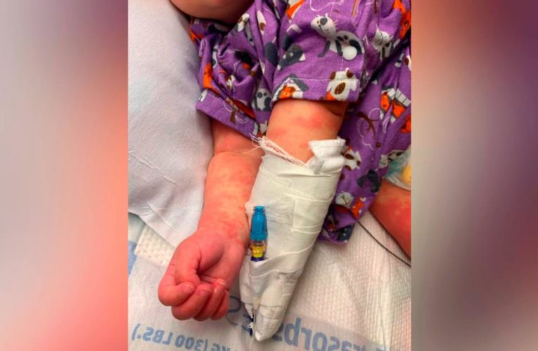 Children who may have multisystem inflammatory syndrome probably need to be hospitalized, doctors say